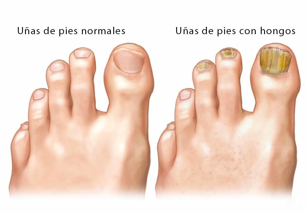 El dolor en la uña del pulgar del pie al hongo