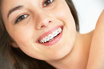 A qu edad se recomienda usar brackets - Como alinear los dientes en casa sin brackets ...
