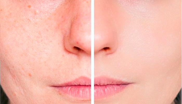 ¿Cómo tratar cicatrices del acné?