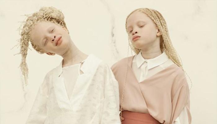 El mundo de la moda es impactado por la belleza de niñas albinas
