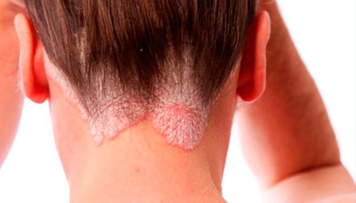 Psoriasis: enfermedad que padecen más de 125 millones de personas en el mundo