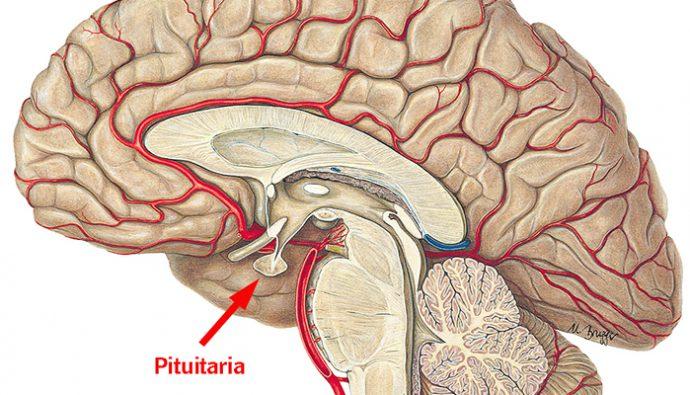 Los tumores en la Glándula Pituitaria y sus formas