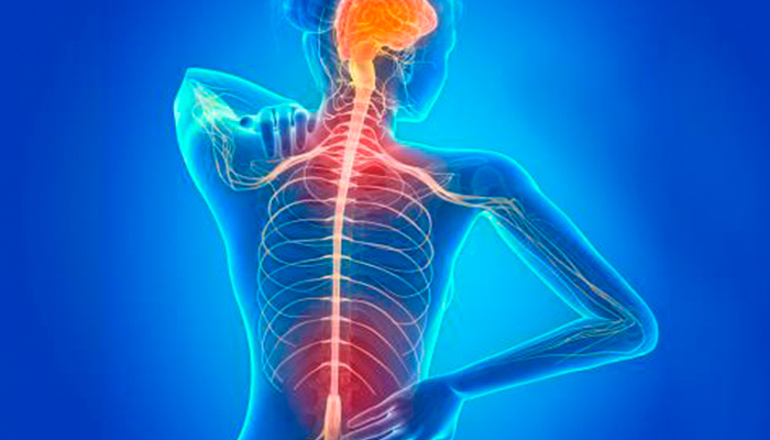 Diferencias entre Esclerósis Múltiple y Neuromielitis Óptica