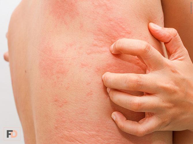 Aprende a identificar la enfermedad de Urticaria espontánea crónica