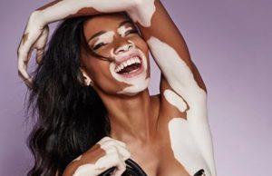 Artista crea impresionantes muñecas con vitiligo en apoyo a niñas con esta condición
