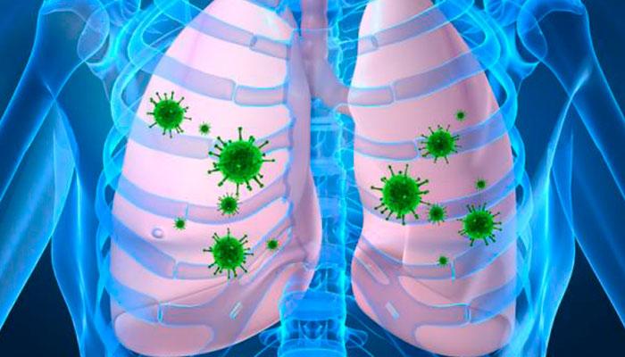 Hoy se conmemora el Día Mundial contra la Neumonía
