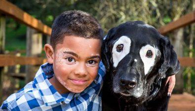 Estaba deprimido hasta que conoció a un perro con su misma enfermedad